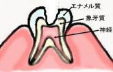 神経に近い象牙質の虫歯