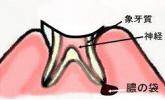 歯根まで進んだ虫歯